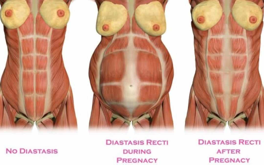 Jak poznám, že mám diastázu?